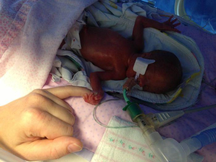 фото ребенка в утробе на 37 недели беременности